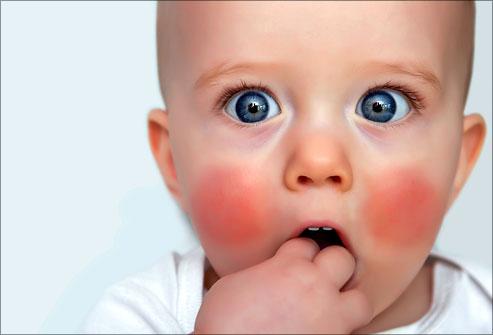 Obraz akumulační poruchy u dítěte